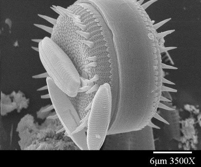Climate variation through time as viewed through the lens of the diatoms